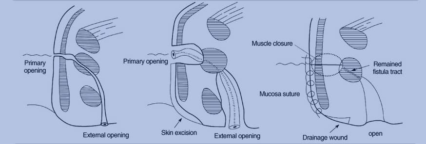 Fistulectomy Surgery
