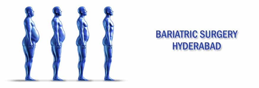 BARIATRIC SURGERY HYDERABAD