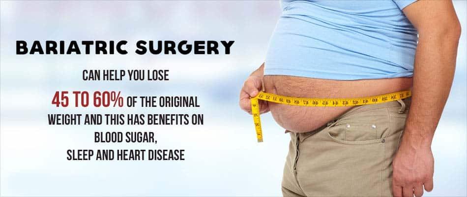 Bariatric-surgery-for-weight-loss Dr venu gopal pareek