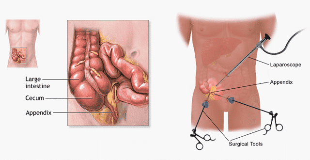 Major symptoms of Appendicitis3