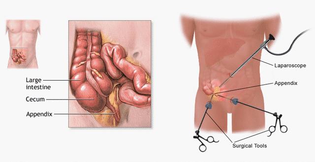 Major symptoms of Appendicitis3