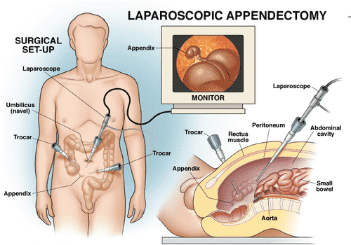 Major symptoms of Appendicitis4