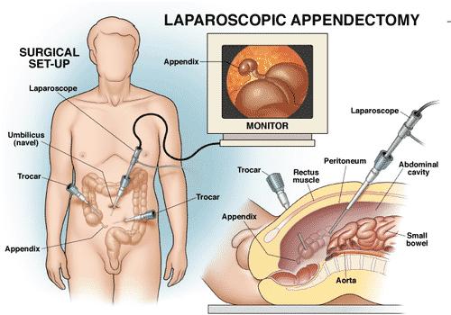 Major symptoms of Appendicitis4