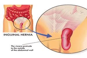 Types of Hernia and Repair2