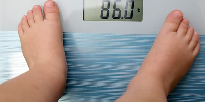 Childhood Obesity - Symptoms, Causes and Prevention