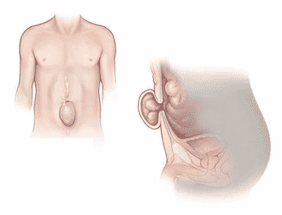 Ventral Hernia -Laparoscopy Vs. Open Repair Which Is Better?