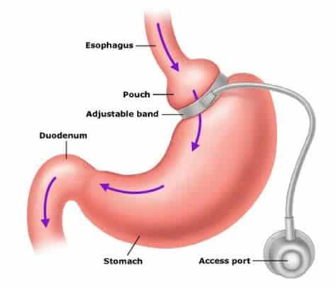 What Are WHO Approved Surgeries For Diabetes In India
