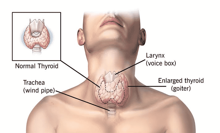 Thyroid Swelling Investigation And Treatment