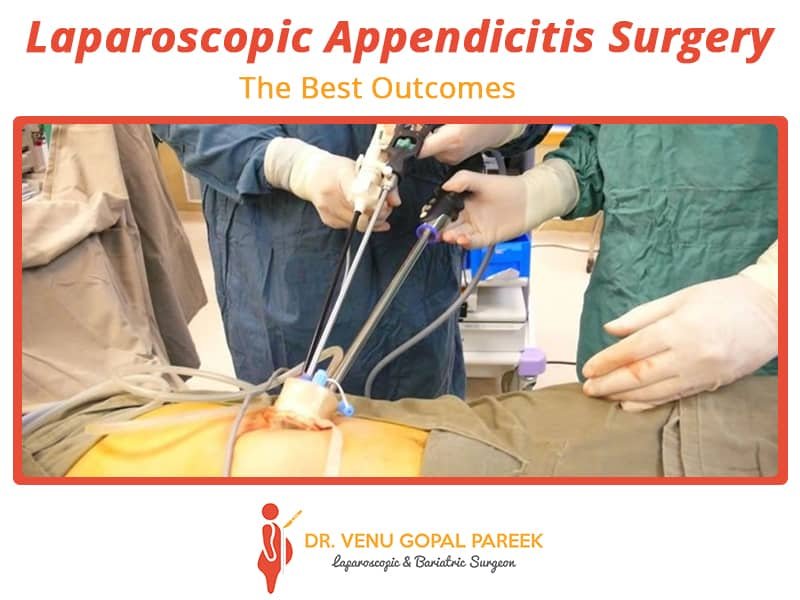 laparoscopic-apendisitis_drvpareek