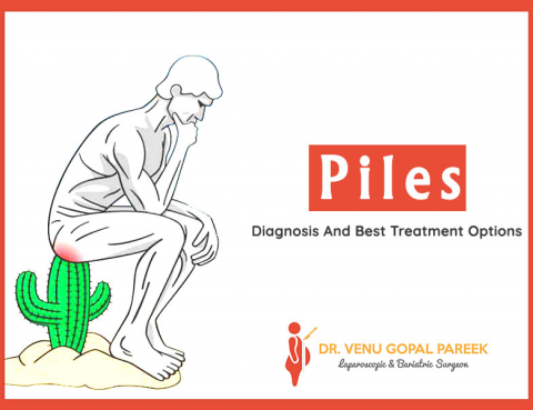Piles- Diagnosis And Best Treatment Options