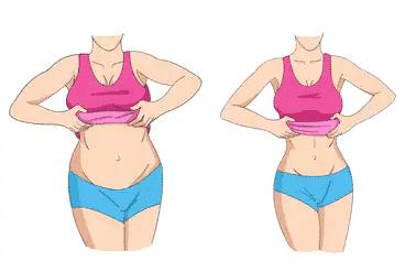 Laparoscopic Sleeve Gastrectomy-Procedure And Outcomes