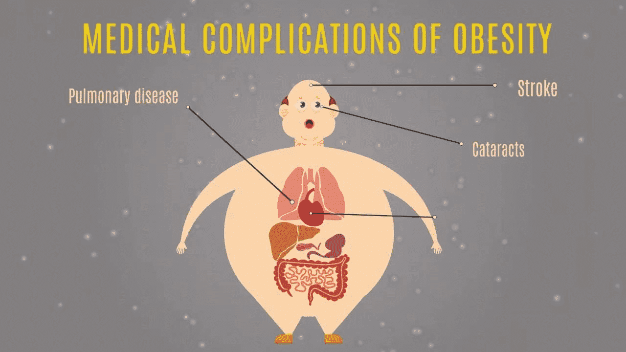 Bariatric Surgery-Final Frontier When Other Weight Loss Option Fails