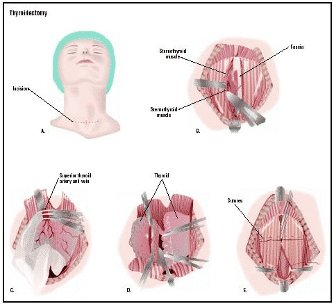 Surgical Treatment For Thyroid Disorder