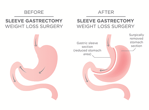 Laparoscopic Sleeve Gastrectomy-Procedure And Outcomes