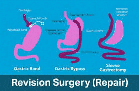 Treatment Option For Weight Regain Post Bariatric Surgery