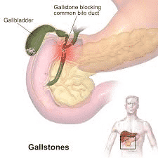 Gallstones Diagnosis, Symptoms And Treatment