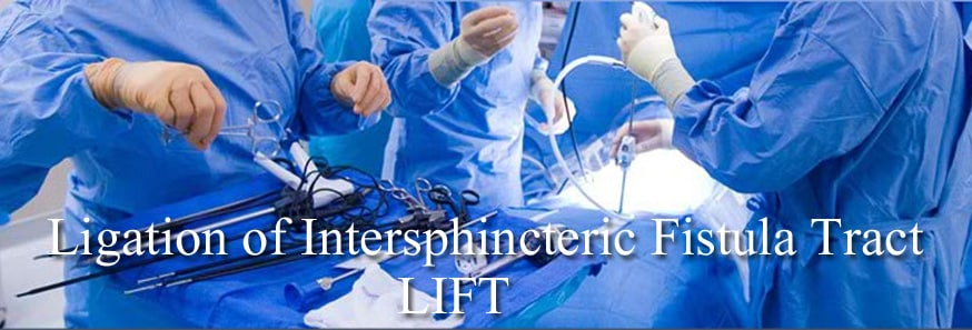 Treat or repair your Fistula in Ano with Ligation of Intersphincteric Fistula Tract, Best Anal Fistula Surgery in Hyderabad