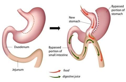 Mini Gastric Bypass Surgery in Hyderabad helps you reduce obesity safely
