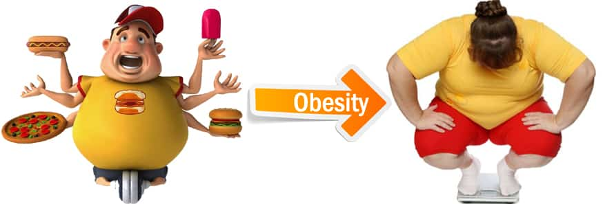 Get Obesity treatment in Hyderabad by Dr V Pareek and reduce your excessive fat and  weight loss