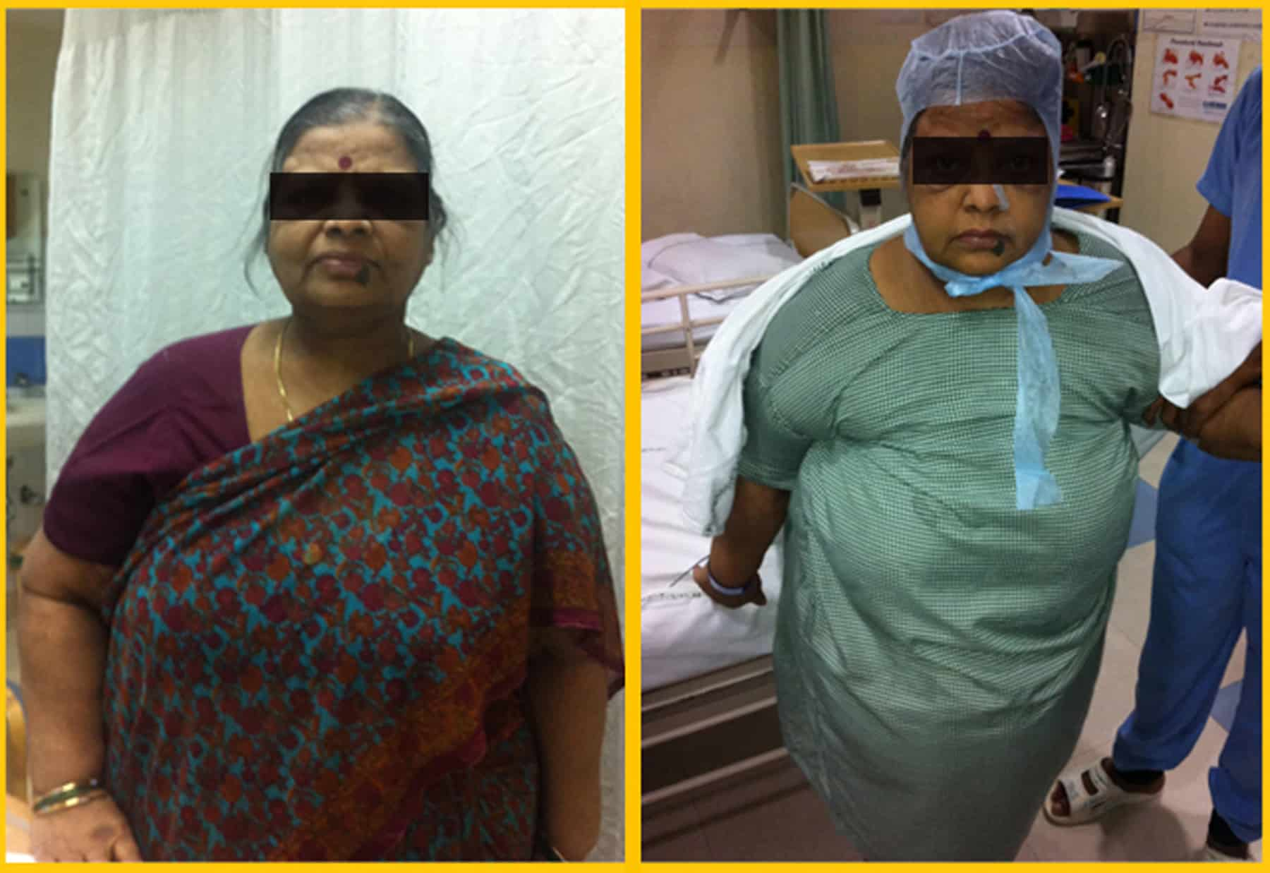 Bariatric surgery results - Weight loss reduction pictures