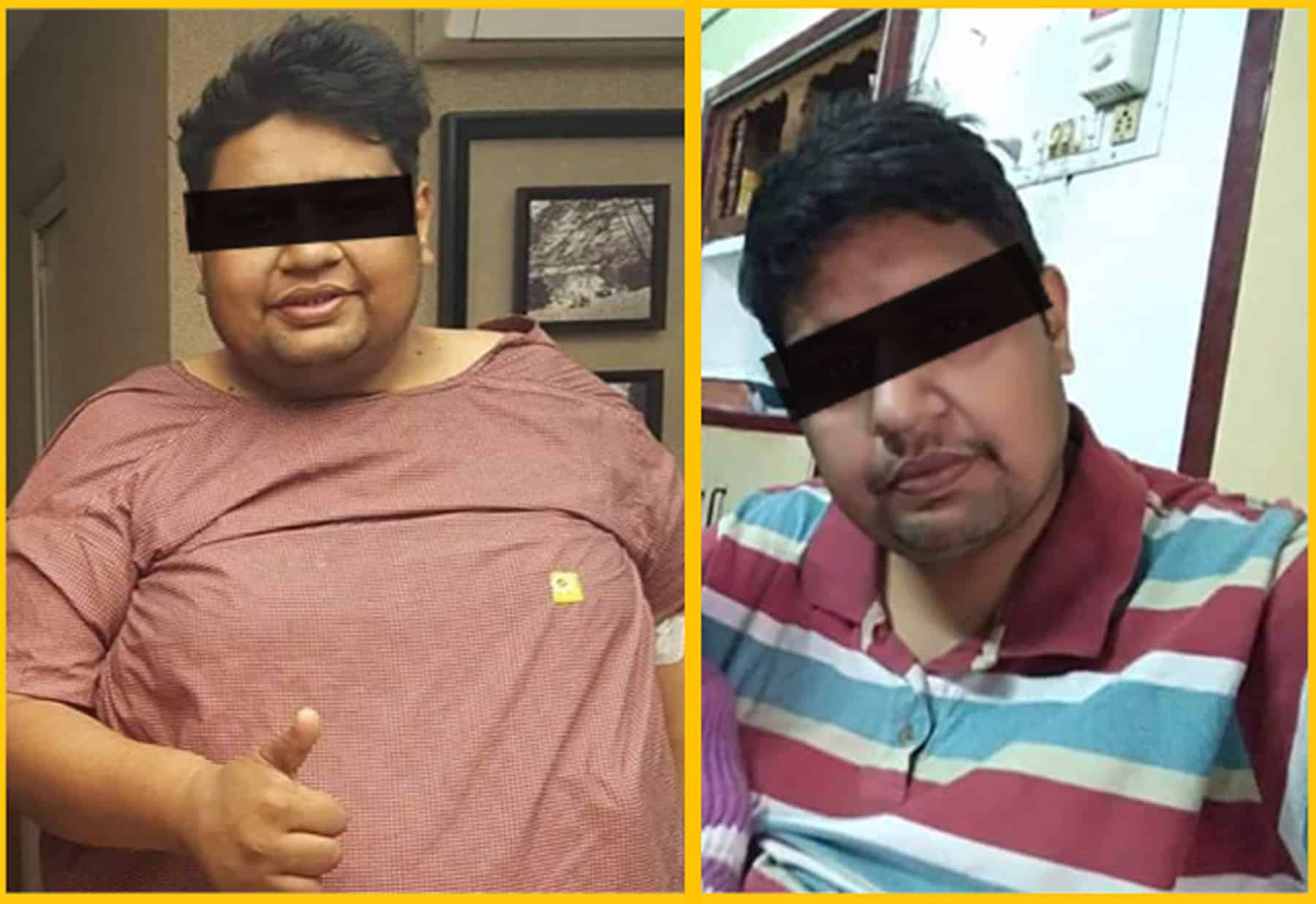 Weight loss reduction results after Bariatric surgery in Hyderabad