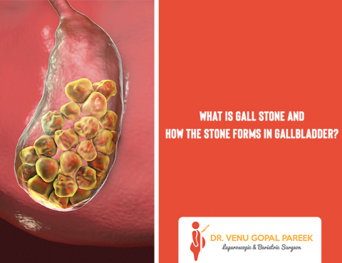 Get today Gallstone Removal Surgery by Dr Venugopal Pareek, One of the Best Laparoscopic and Bariatric surgeon in Hyderabad