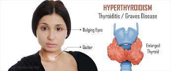 Get today Hypothyroidism treatment by Dr Venugopal Pareek, Best Thyroid surgeon in Hyderabad