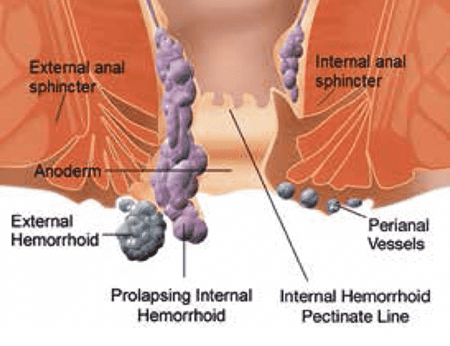 External and Internal Haemorrhoids surgery by Dr Venugopal Pareek, One of the Best Bariatric clinic in Hyderabad