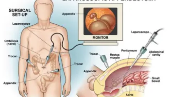 Gallbladder Removal surgery procedure by Dr Venugopal Pareek, Bariatric and Laparoscopic specialist in Hyderabad