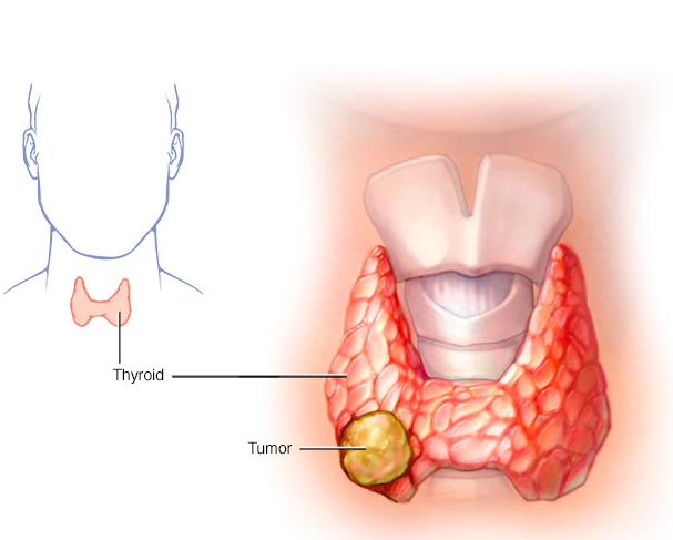 Best Thyroid cancer treatment By Dr Venugopal Pareek, Best Bariatric surgery doctor near me