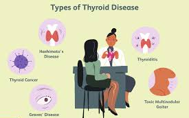 All types of Thyroid diseases treatment by Dr Venugopal Pareek, Best laparoscopic and Thyroid surgeon in Hyderabad