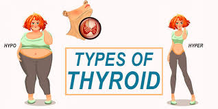 All types of Thyroid diseases treatment by Dr Venugopal Pareek, One of the Thyroid specialist doctor near me