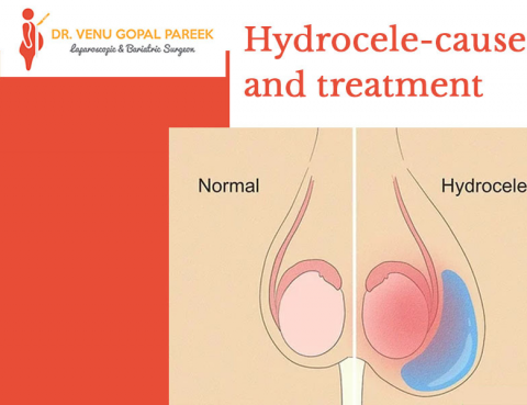 Best hydrocele treatment clinic in Hyderabad, laparoscopic gallbladder surgery doctor near me