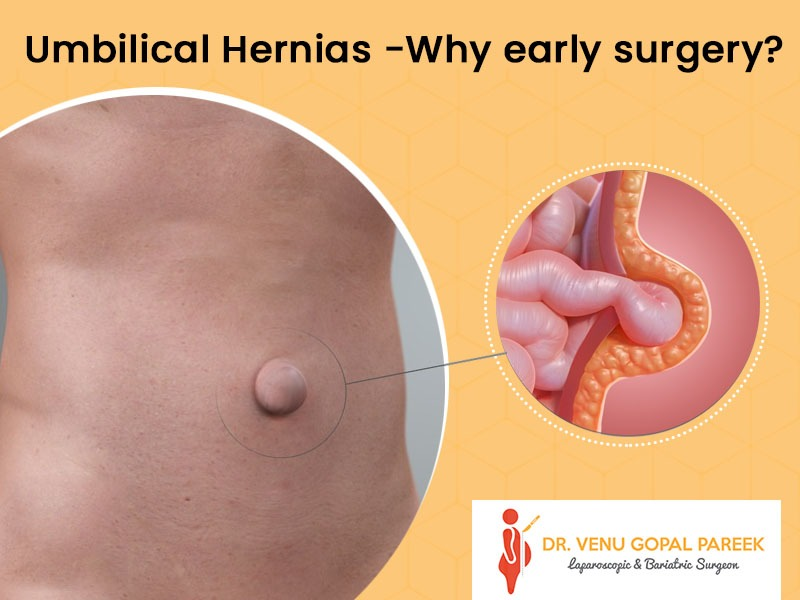 Consult Dr Venugopal Pareek, Laparoscopic surgeon in hyderabad for Best umbilical hernia surgery in hyderabad