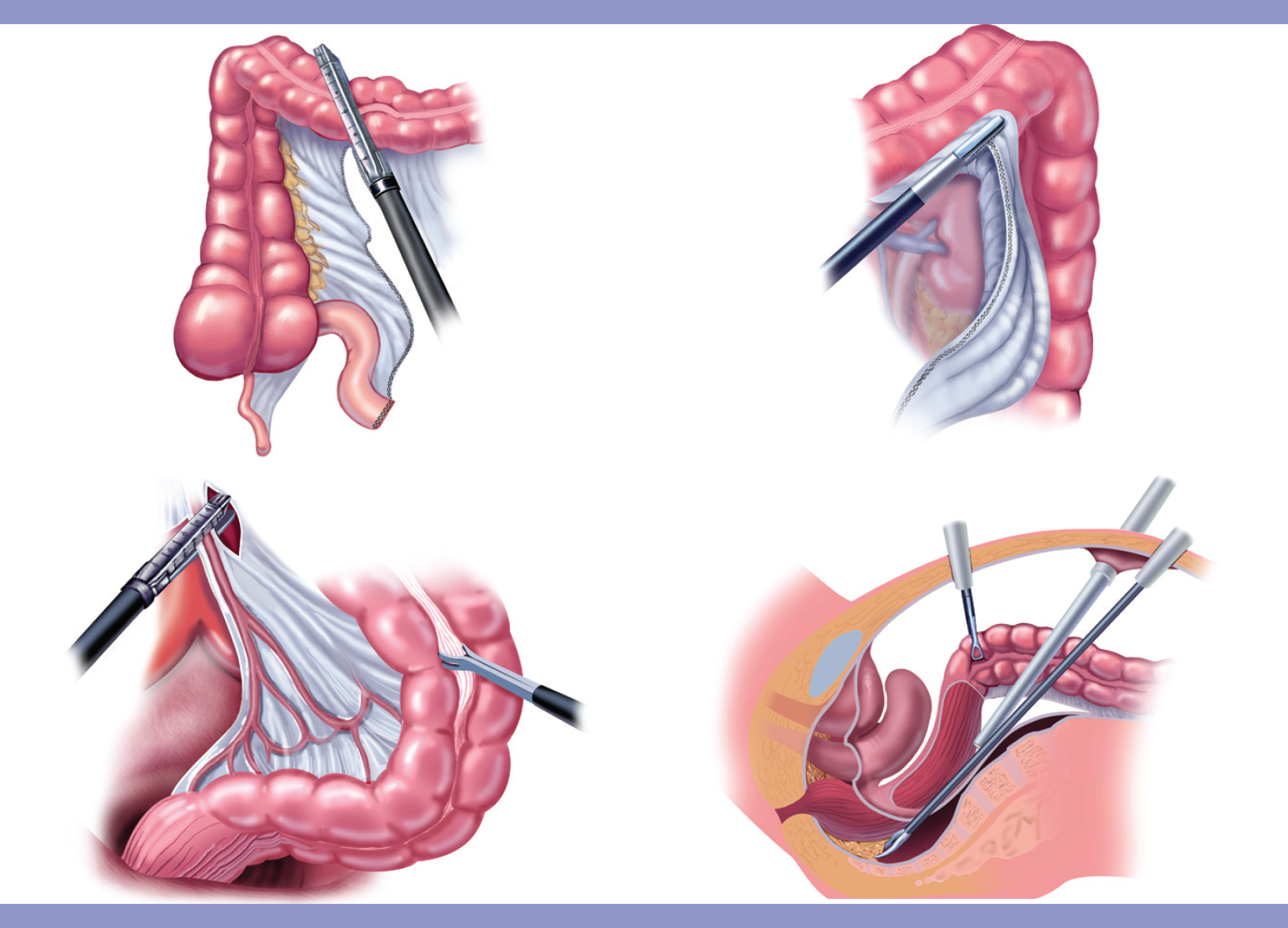 Consult with Dr. Venugopal Pareek for Colon Cancer Surgery, One of the best Laparoscopic Appendix Removal Cost in Hyderabad