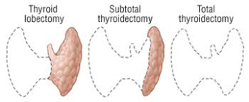 Best Thyroid Surgery for Different Thyroid Diseases in Hyderabad, thyroid treatment center near me