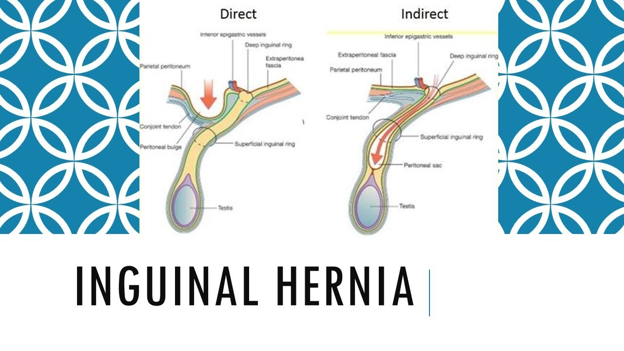 Best clinic for all types of Hernia surgery in Hyderabad, best hernia doctor near Secunderabad