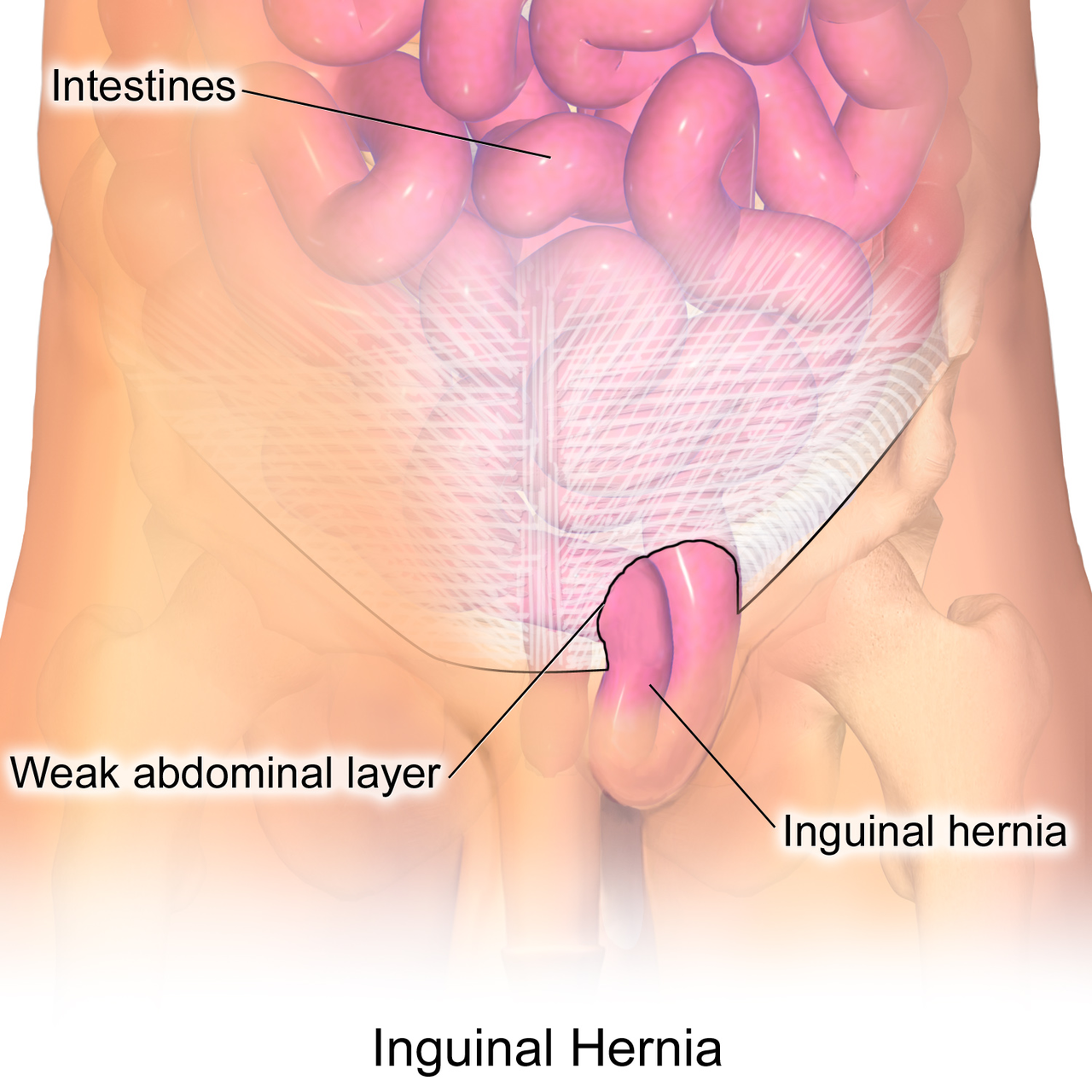 Inguinal hernia surgery cost in Hyderabad, best hernia specialist near Secunderabad