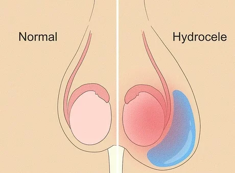 Make an Appointment with Dr. Venugopal Pareek to know the symptoms and best treatment for Hydrocele, Hydrocele doctor near me