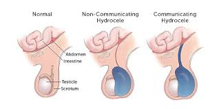 All types of Hydrocele treatments in Hyderabad, hydrocele specialist doctor near Secunderabad