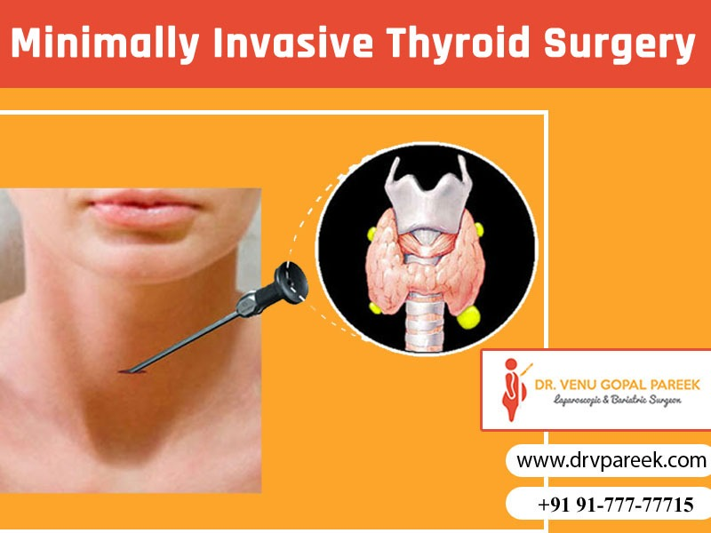 Consult Dr. Venugopal Pareek for minimally invasive thyroid surgery, One of the best thyroid surgeons in Hyderabad