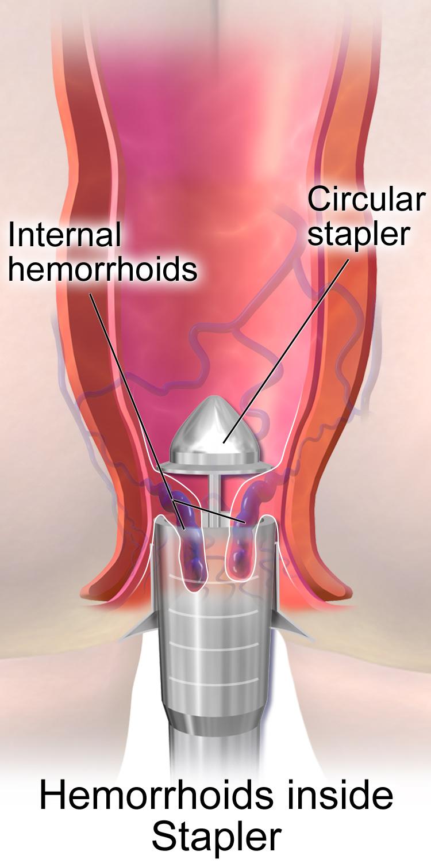 Best Inside Haemorrhoids stapler surgery in Hyderabad piles best therapist near Secunderabad