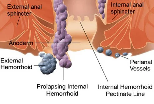 Contact Dr. Venugopal Pareek to Know everything about Your Haemorrhoids, One of the best Piles treatment doctor in Hyderabad