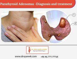 Best Parathyroid treatment clinic in Hyderabad, thyroid center near me