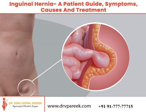 The ultimate guide of Inguinal Hernia by Dr. Venugopal Pareek, One of the best Hernias Specialists in Hyderabad