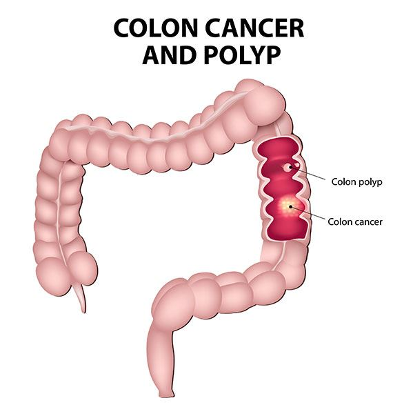 Colorectal Cancer and Polyps at Dr. Venugopal Pareek clinic, One of the best Bariatric Surgery Centers in Hyderabad