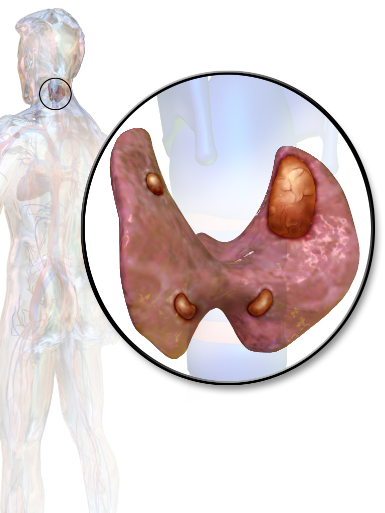 Parathyroid Adenomas Symptoms, causes and their treatment at Dr. Venugopal Pareek clinic, One of the best centers for thyroid removals in Hyderabad
