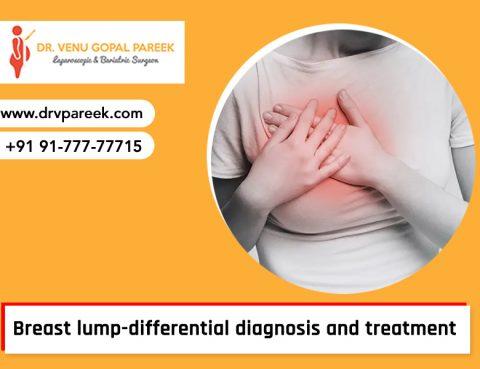 Consult Dr Venugopal for breast lump treatment in Hyderabad, Breast Lump Doctors in Hyderabad