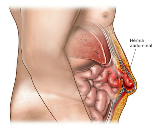 Best Laparoscopic Hernia surgery by Dr V Pareek, One of the best Bariatric surgery specialist in Hyderabad