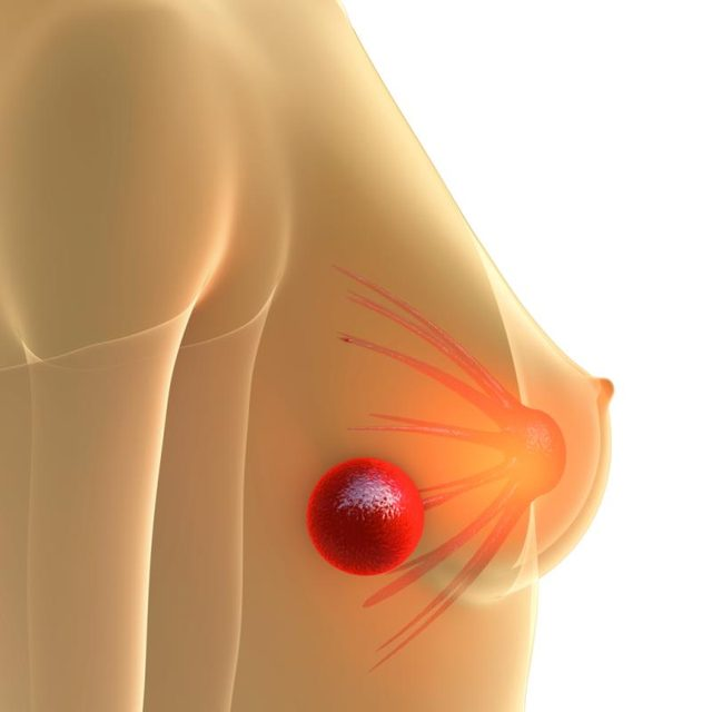 Book appointment today with Dr V Pareek for Breast lump removal surgery in hyderabad, breast doctor specialist near me